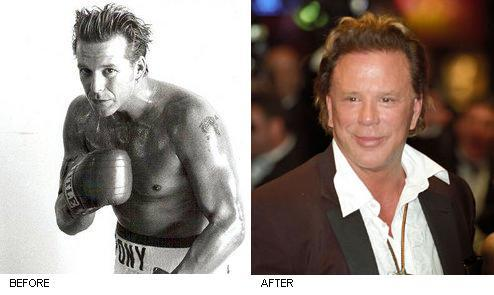 Mickey Rourke s Face